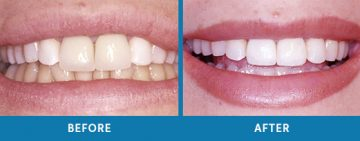 Cosmetic Dentistry Before / After 1