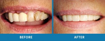 Cosmetic Dentistry Before / After 10