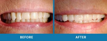 Cosmetic Dentistry Before / After 11