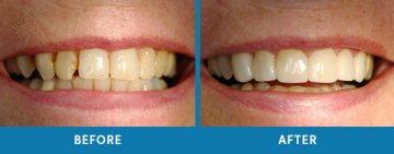 Cosmetic Dentistry Before / After 12