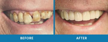 Cosmetic Dentistry Before / After 2