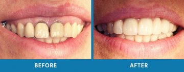 Cosmetic Dentistry Before / After 3