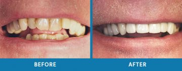 Cosmetic Dentistry Before / After 4