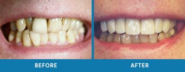 Cosmetic Dentistry Before / After 5