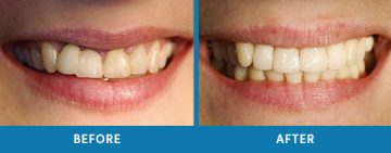 Cosmetic Dentistry Before / After 6