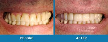 Cosmetic Dentistry Before / After 7