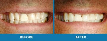 Cosmetic Dentistry Before / After 8