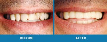 Cosmetic Dentistry Before / After 9